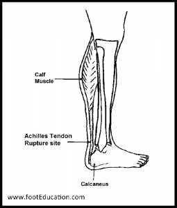 The Achilles Tendon Muscle and rupture site