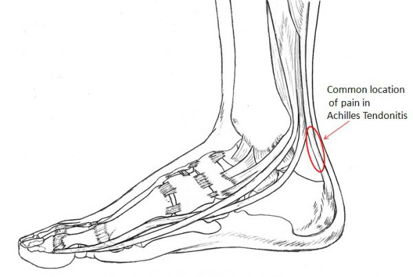 Common location of Achilles Tendonitis pain
