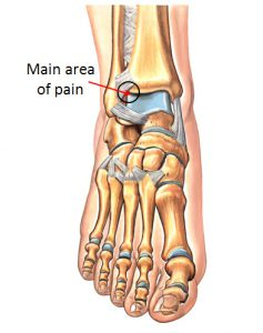 Anterolateral Impingement Typical Location of Pain