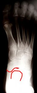 CMT AP X-Ray