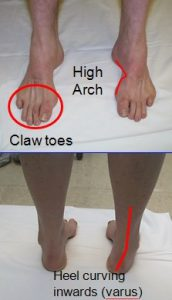 Typical Charcot-Marie-Tooth Foot Deformity