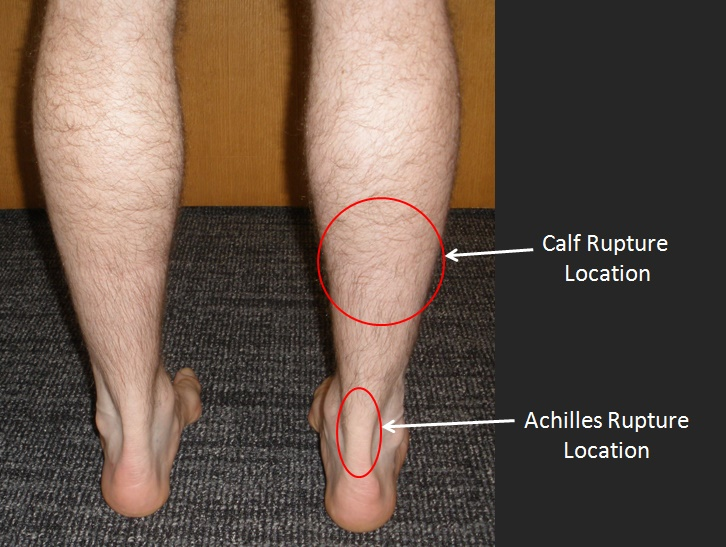Calf Muscle Tear - FootEducation