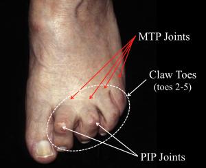 Claw foot deformity, (Hammer Toes)