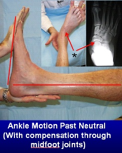 Compensatory motion through the joints in front of the ankle joint