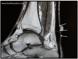 MRI showing swelling associated with non-insertional Achilles Tendonitis.