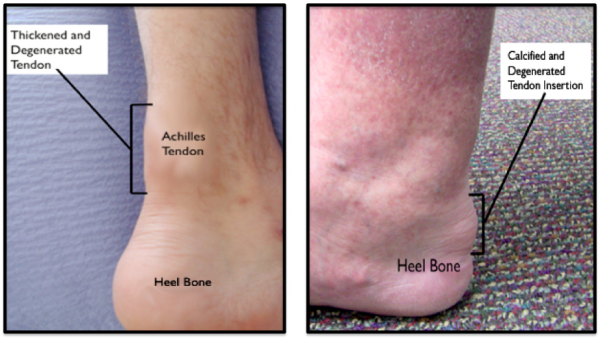 Location of Symptoms: Achilles tendonitis versus Insertional Achilles Tendonitis