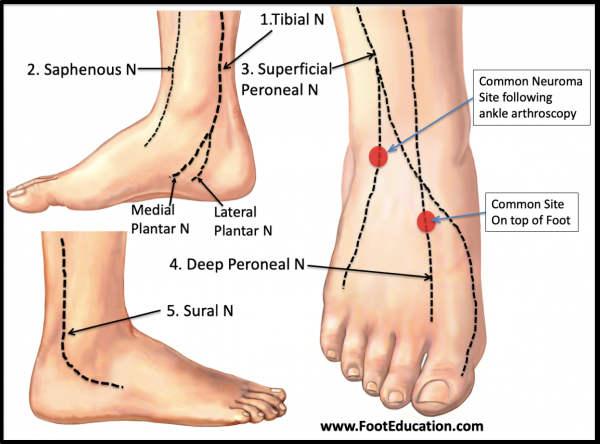 5 Common Nerves of the Foot and Ankle