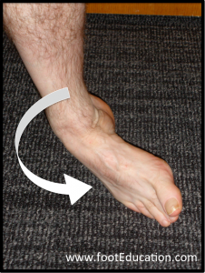 Ankle Inversion, the typical mechanism of injury of an ankle sprain.