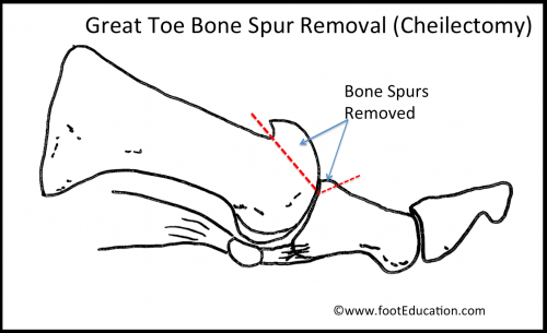 Great Toe Cheilectomy (bone spur removal) for treatment of mild Hallux Rigidus (arthritis of great toe)