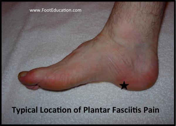 Common location of plantar fascia pain