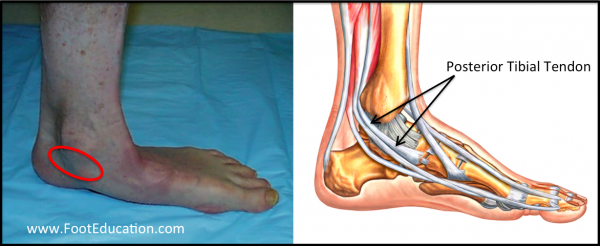 Flatfoot and Location of Posterior Tibial Tendon, Acquired Adult Flatfoot Deformity