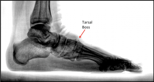 X-Ray showing Tarsal Boss -midfoot Bone Spur