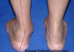 Heel shifted to the outside in Flatfoot Deformity