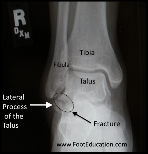 Lateral Process Fracture of Talus on x-ray