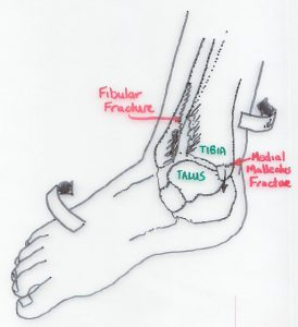 Twisting mechanism causing an Ankle Fracture