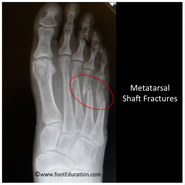 Metatarsal shaft Fractures