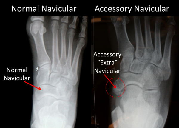 """Normal Navicular compared to """"Accessory"""" Navicular shown on x-ray"""