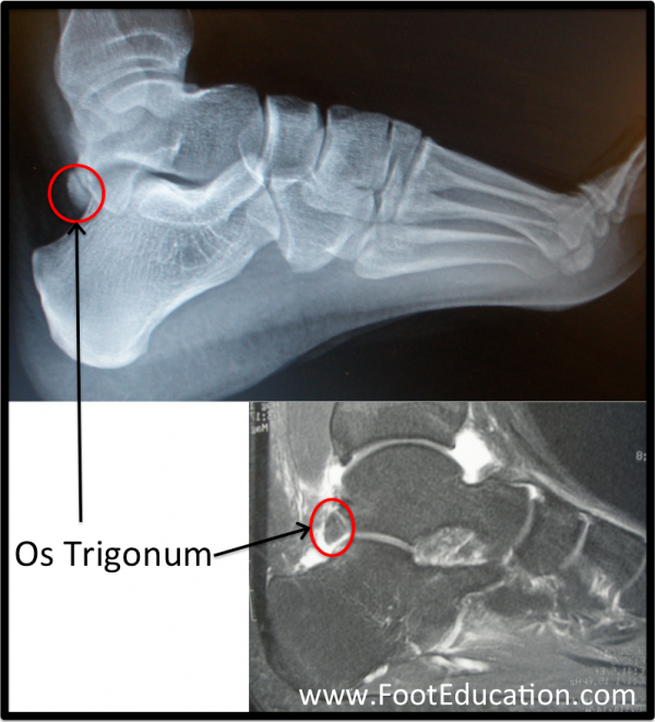 Os Trigonum (circled in red) on plain ankle x-ray (top) and MRI (bottom).