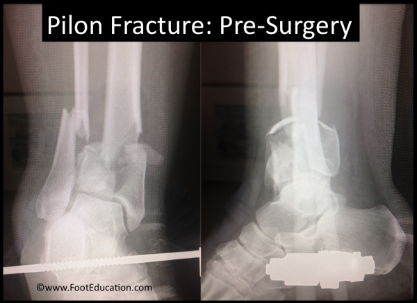 Pilon Fracture before surgery X-Ray