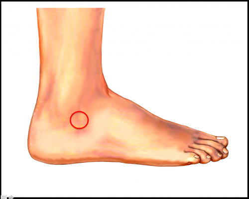Sinus Tarsi Pain Location