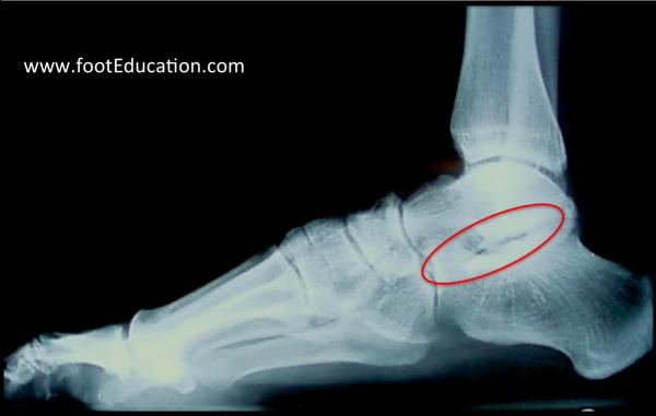 Subtalar Arthritis x-ray