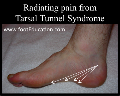 Typical pain location of Tarsal Tunnel Syndrome