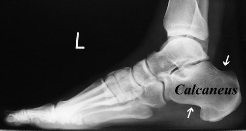 X-ray of foot showing a normal calcaneus from the side