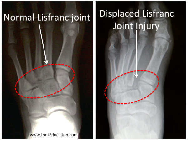 Normal Lisfranc vs Lisfranc Fracture