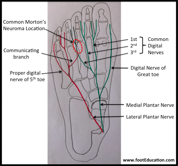 Location of Nerve diagram, Morton's Neuroma