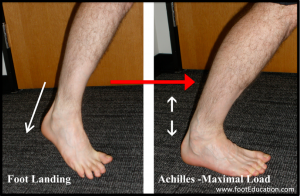 Achilles Tendon Ruptures Mechanism of Injury - Sudden Change of Direction to Maximal Achilles Load