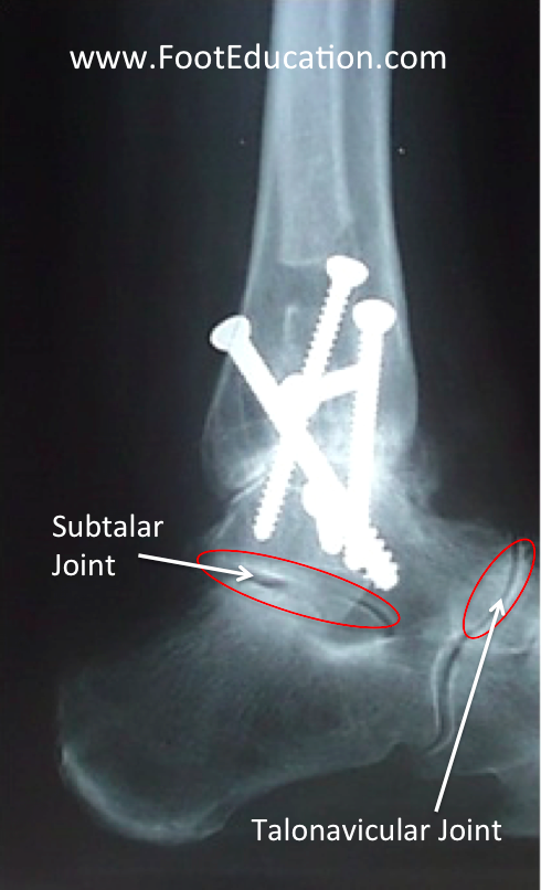 Ankle Fusion (Arthrodesis) on xray