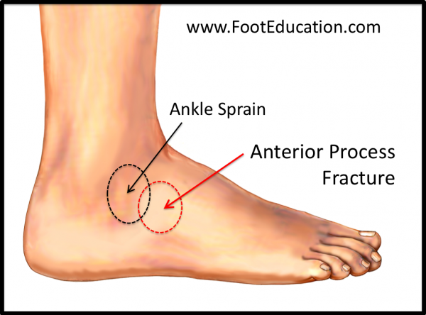 Anterior Process of Calcaneus -Location of Injury