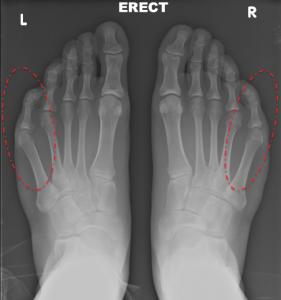 Bunionette pre-op x-ray