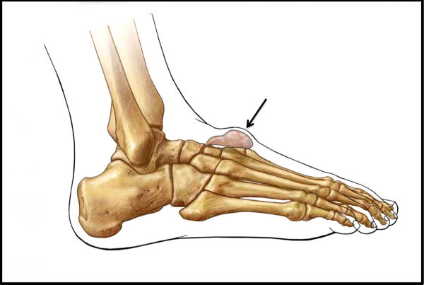 Ganglion Cyst originating from midfoot joint