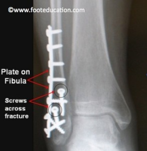 Lateral Malleolus (Distal Fibula) Fracture after surgery