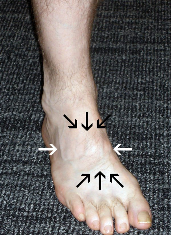 Lisfranc Injury Location of Pain