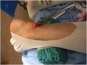 Mini-Open Incision Repair of achilles tendon