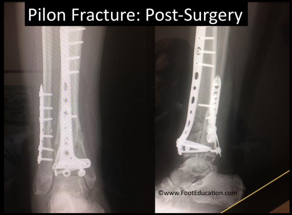 Pilon Fracture Following Surgery