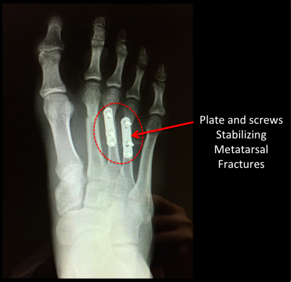 Surgical Stabilization of Metatarsal Fractures