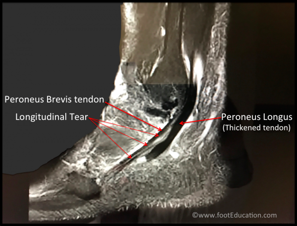 MRI showing longitudinal tear of the peroneus brevis