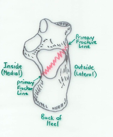 Calcaneal Fracture, Primary Fracture line viewed from the top (also showing secondary fracture lines)