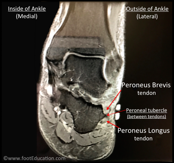 MRI inflamed swollen peroneus longus and brevis tendons