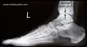 Normal ankle joint on x-ray
