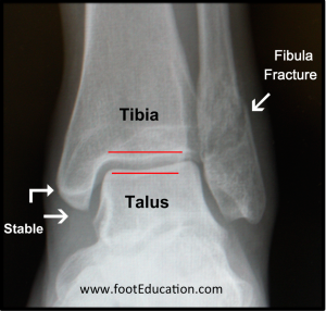 Plain X-Ray of a Stable Ankle Fracture