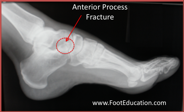 X-ray Anterior Process fracture of the Calcaneus