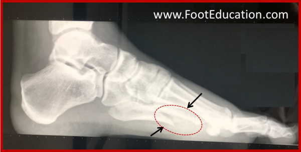 5th Metatarsal shaft Fracture -Lateral view