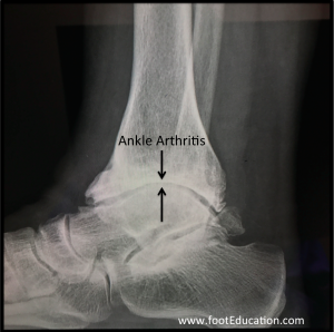 Severe Ankle Arthritis Lateral X-Ray