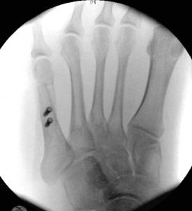 Bunionette AP x-ray post-op