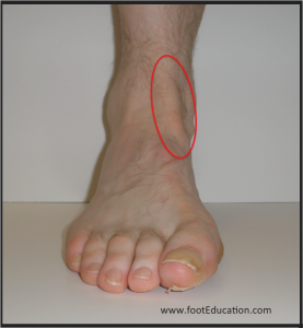 Location of pain and swelling in tibialis anterior tendonitis