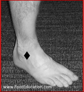 Main area of Tenderness, sprained ankle